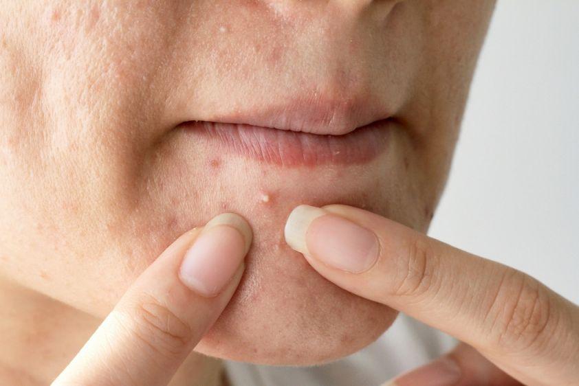 Come liberarsi da posti sulla pelle di grasso di faccia